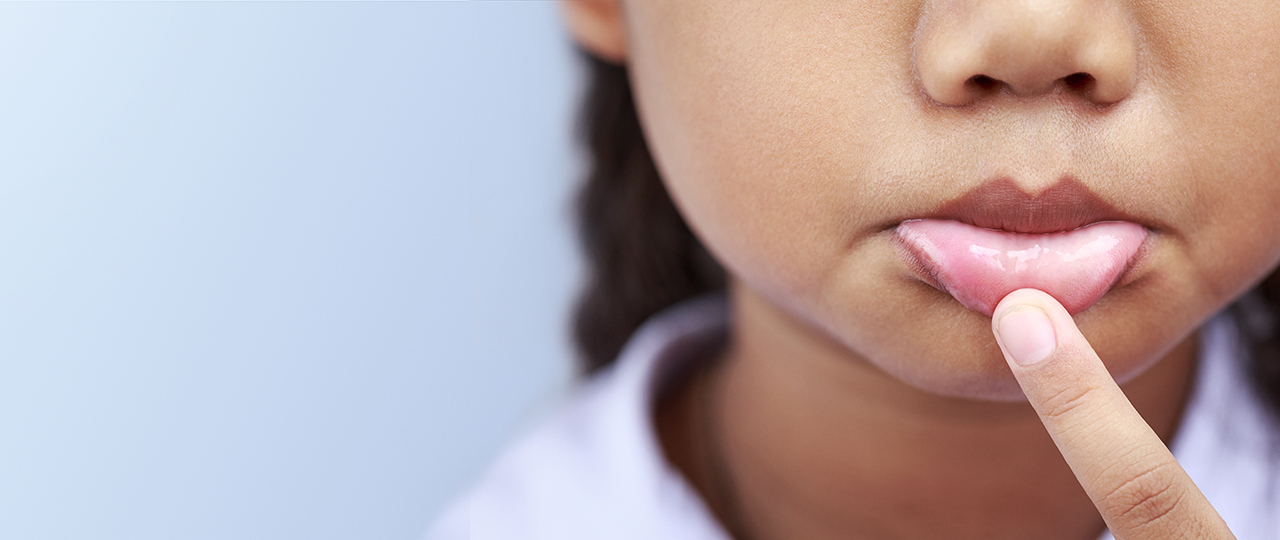 θεραπεία στοματικών ελκών για τα παιδιά