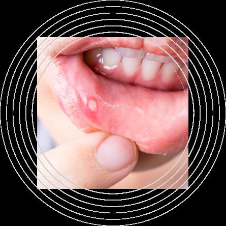 Ευαίσθητος στοματικός βλεννογόνος